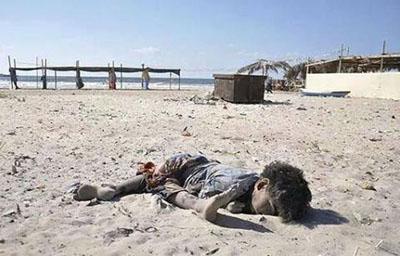 Ilustrasi Seorang anak Palestina korban dari kekejaman Israel. foto: Ist